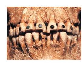 История стоматологии с древнейших времен