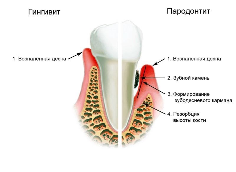 гингивопластика