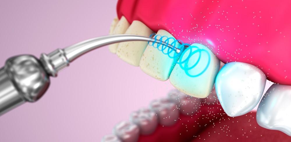Принцип чистки зубов ультразвуком