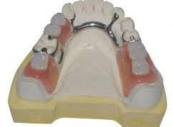 бюгельный протез - фото