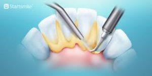 Камни на зубах: образование, последствия, профилактические меры