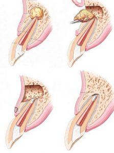 Что такое киста в зубе, как ее диагностируют и лечат