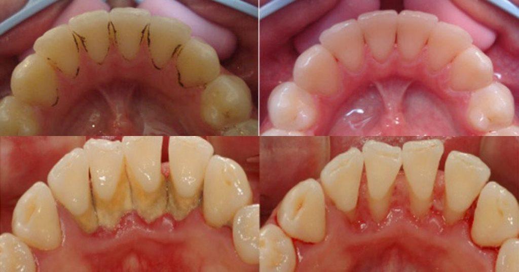 Почему удалять зубной камень нужно обязательно?