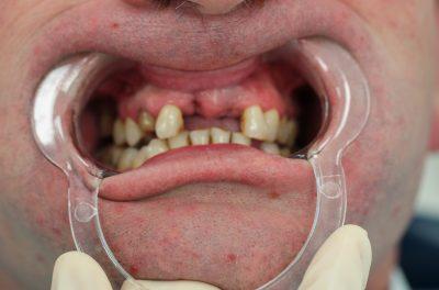 фото до имплантации