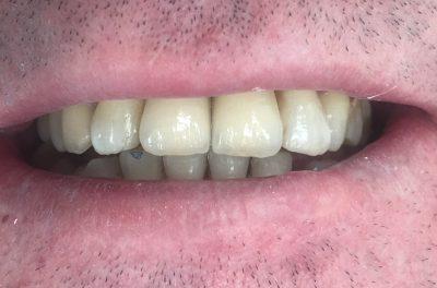 имплантация верней челюсти