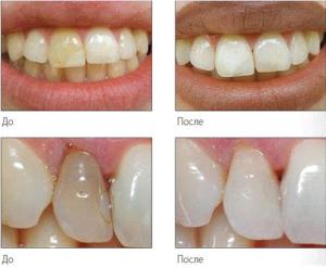 Внутрикоронковое отбеливание зубов