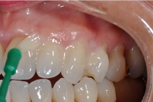 Реминерализация эмали зубов