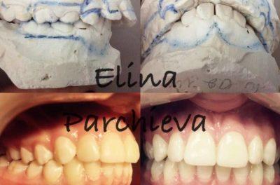 Аппарат двухчелюстной, срок активации аппарата зависит от того, насколько пациент бережно его носит. Аппарат расширяет верхнюю челюсть и дает рост нижней челюсти, при дистальной окклюзии.