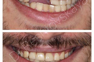 протезирование фото до и после (доктор Рештовская К.Б.)
