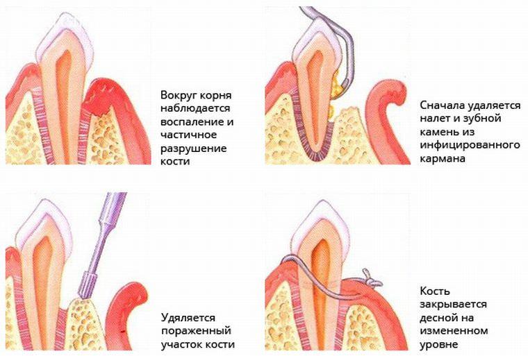 кюретаж зуба
