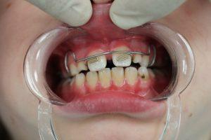 пластика уздечки губы фото после