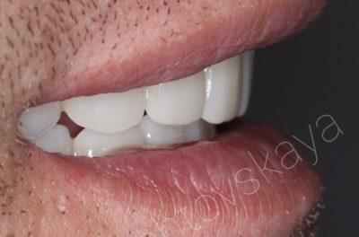 Условно-съёмный протез на верхней, нижней челюсти на четырёх импланататах