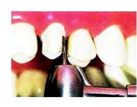 Цельнолитые коронки и мостовидные протезы – минусы и плюсы