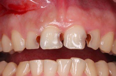 Глубокий кариес фронтальных зубов (фото до лечения).