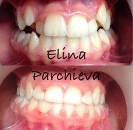 Верхняя челюсть - сапфировые брекеты, нижняя челюсть - металлические брекеты.