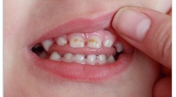 особенности лечения кариеса у детей