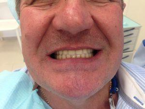 Результат имплантации и протезирования МК на имплантах (доктор Денисов И.А.)