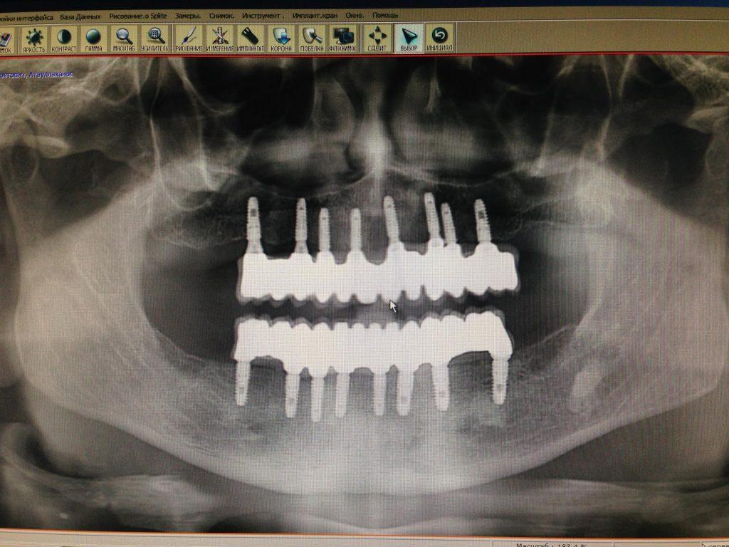 Ортопантомограмма после имплантации под несъёмное протезирование (доктор Денисов И.А.)