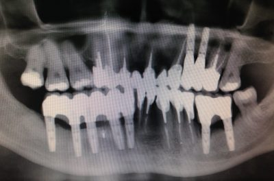 Снимок после имплантации и протезирования