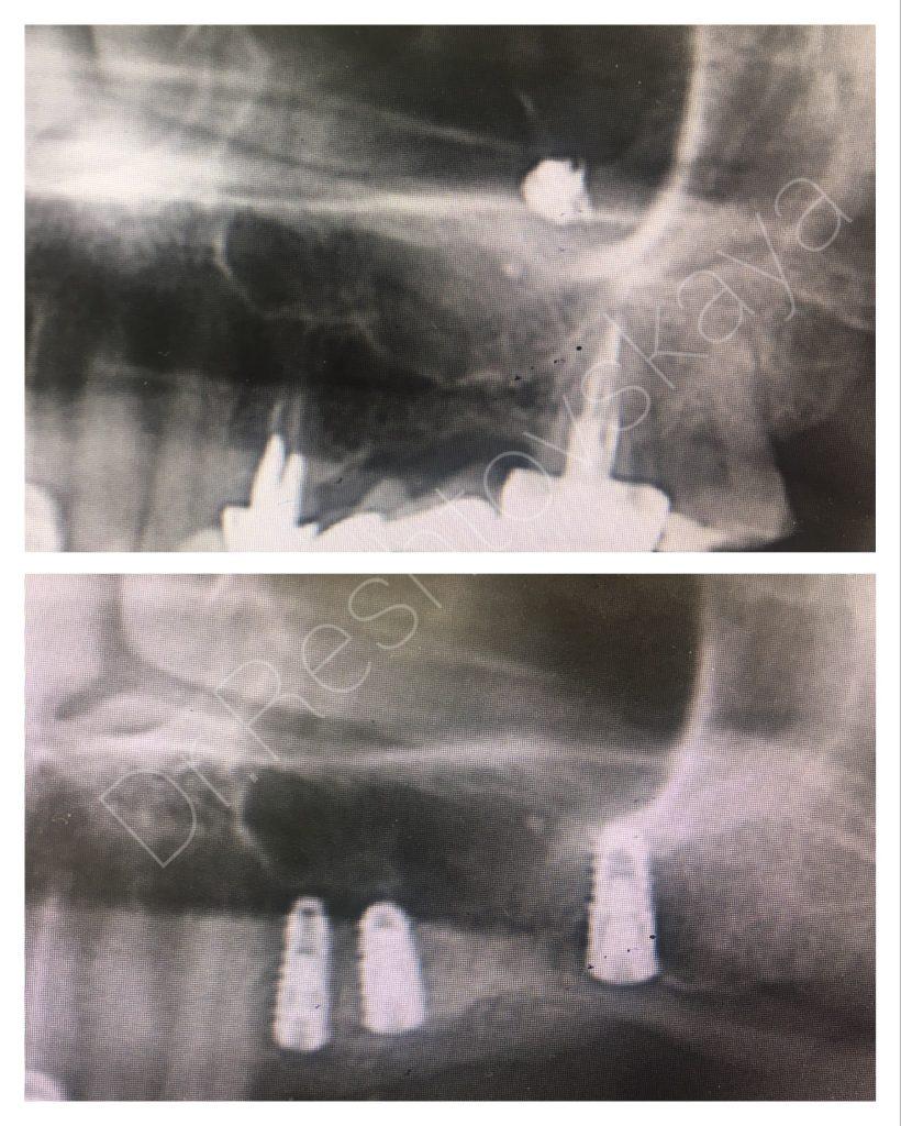 фото удаление инородного тела и имплантация