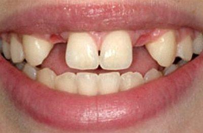 вставить зубы в рассрочку