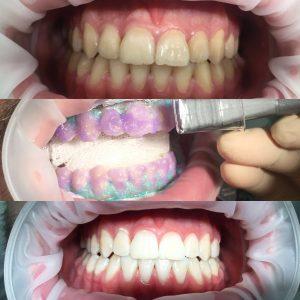 Лазерное отбеливание - фото до и после.
