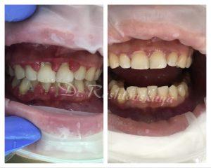 Лечение пародонтита с использованием лазера. Результат спустя 7 дней после начала лечения.
