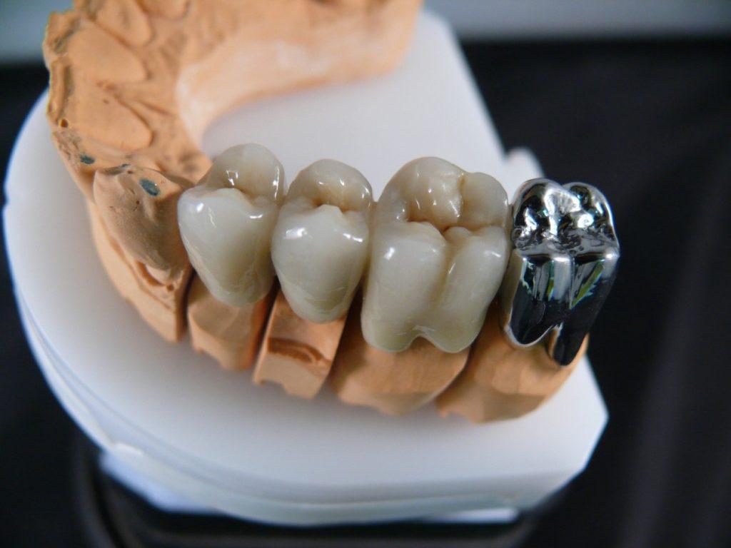 Цена коронки на зуб