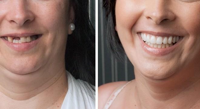 Из чего складываются цены протезирования зубов