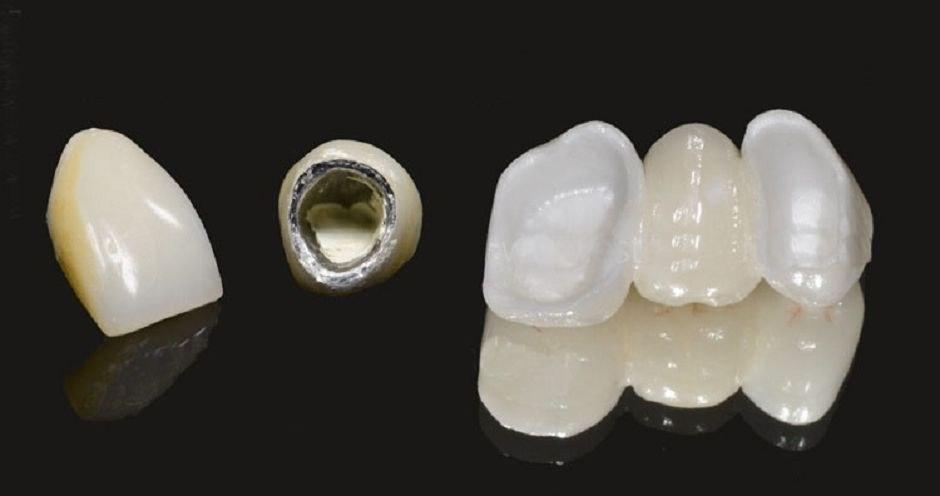 Металлокерамические конструкции зубов