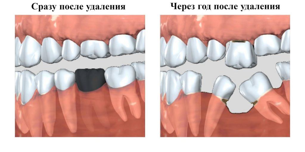 Пустое место после удаления зуба