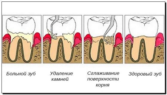 пародонтологическая чистка зубов
