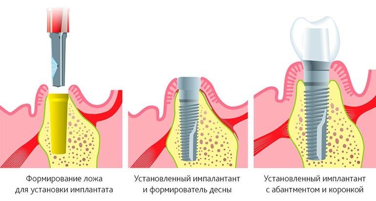 одноэтапная имплантация