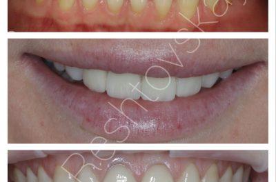 Отбеливание зубов, установка виниров зубы 1.2-2.2