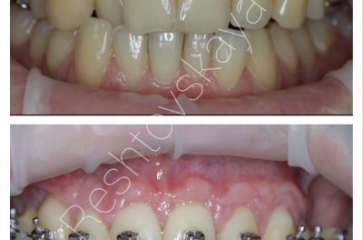пластика рецессий десны перед проведением ортодонтического лечения