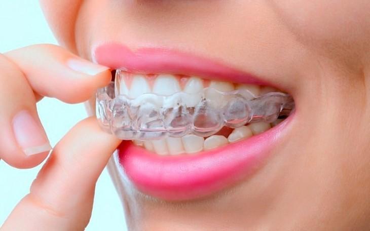 Капы и элайнеры для выравнивания зубов