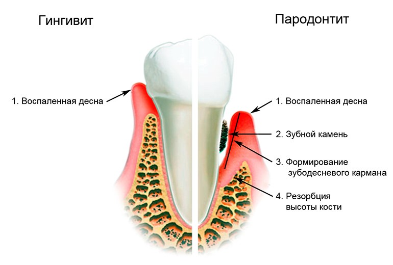 Болезни дёсен – виды и лечение